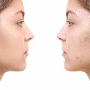 Zwei Frauen schauen sich an. Eine Frau mit Akne, die andere mit reiner Haut